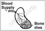 Scaphoid blood supply