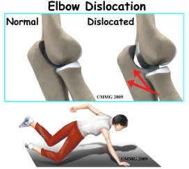 elbow_dislocation_causes01