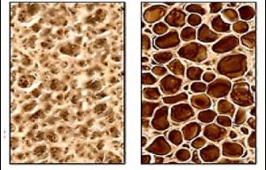 info sheet english osteoporosis