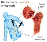 info sheet hebrew hip fracture